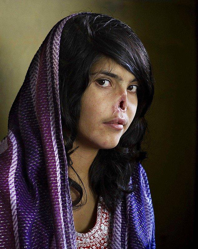 2. Cesaret; Babası tarafından kocasına satılan bu Afgan kız, kocasından kaçtığında ise kulakları ve burnu kesilerek cezalandırılıp tekrar kocasının yanına döndürüldü.