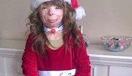 Малышка с тяжелейшими ожогами получила кучу рождественских открыток