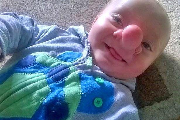 Малыш с растущим в носу мозгом