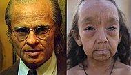 Дети с болезнью Бенжамина Баттона