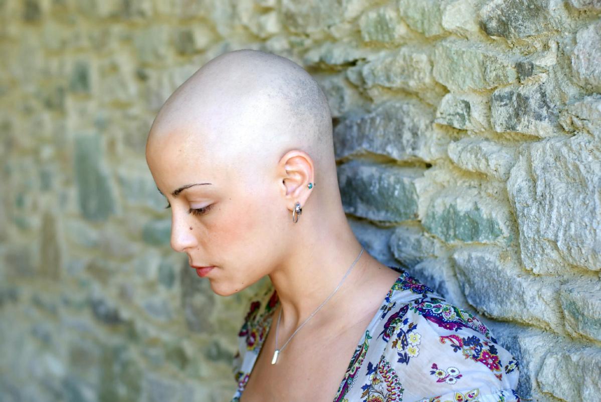 скажите пожалуйста при каких вариантах выпадают волосы при химиотерапии либо облучении