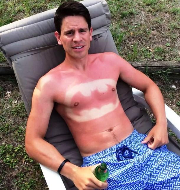 Сгорели плечи на солнце что делать в домашних условиях