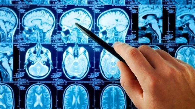 18. Depresyonun Kalıcı Beyin Hasarı Yarattığına Dair Yeni Ulaşılan Bilimsel Kanıtlar ve Çözüm Yolları