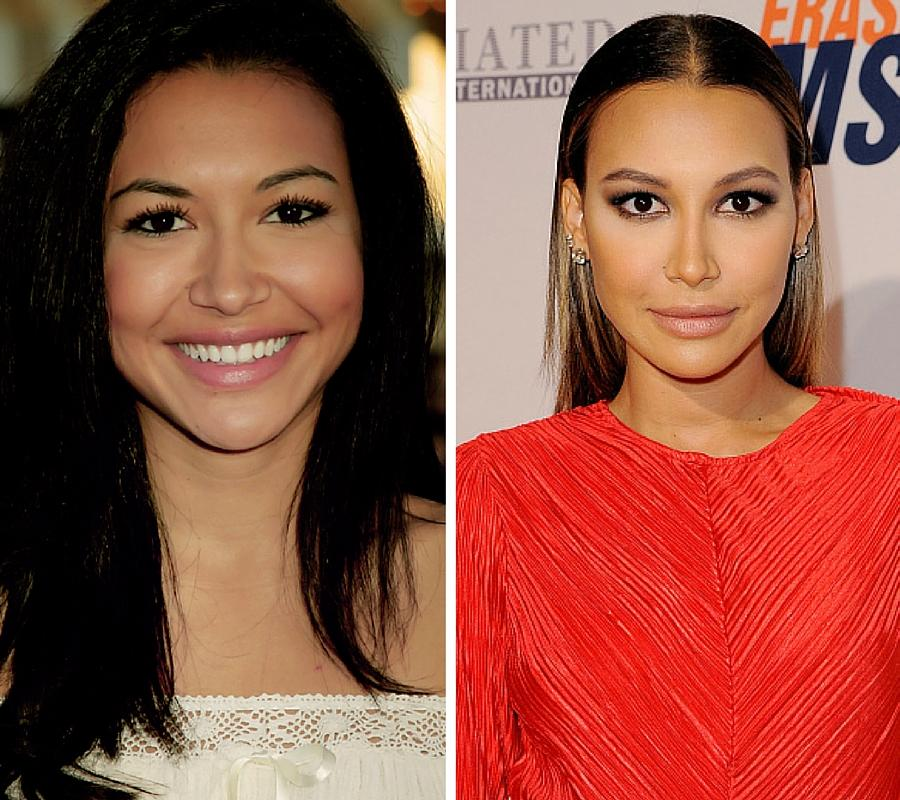 15 Celebrities Who Looked Way Better Before Plastic