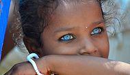 17 Cutest Children With Waardenburg Syndrome