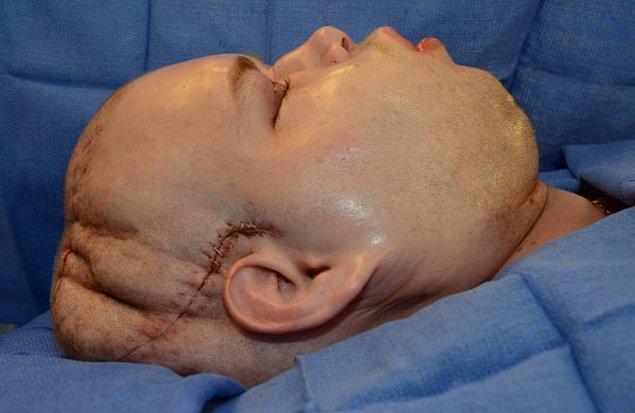Hardison'a nakledilen yüzde, iyileşmenin bir parçası olarak şişme meydana gelir.