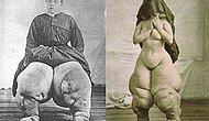 Elephantiasis : Massive Body Swelling!