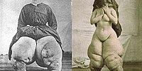 Elephantiasis : Massive Body Swelling!