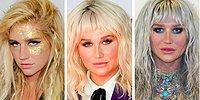 15 Celebrities Who Looked Way Better Before Plastic Surgery