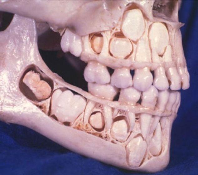 Если вам когда-нибудь было интересно, как выглядит череп человека перед обновлением молочных зубов, то вот он