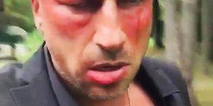 Нагиев шокировал пользователей Instagram разбитым лицом