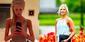 Стремящаяся похудеть девушка весила 30 килограммов и чуть не умерла