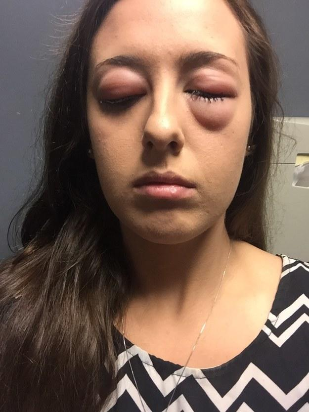 Allergies to eye makeup