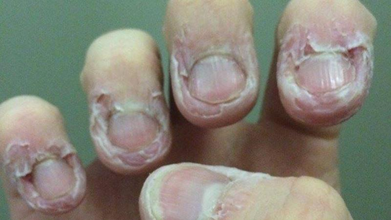 All Of A Sudden The Skin Around Your Nails Start To Bleed