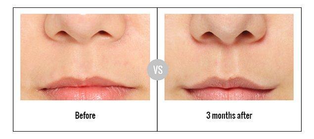 2. Burun-dudak arası mesafeyi kısaltma