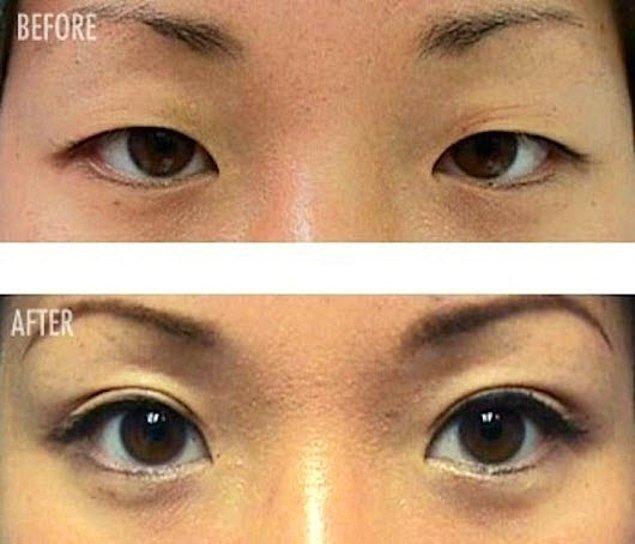 14. Çift göz kapağı yaptırma