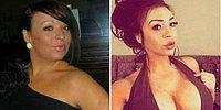 Woman Spends $33,700 On Plastic Surgery To Make Herself 'Perfect'