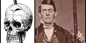 """Here's The Story Of Neuroscience's Most Famous Patient: """"The Man With The Iron Bar"""""""