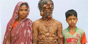 Отец троих детей может потерять зрение из-за многочисленных опухолей