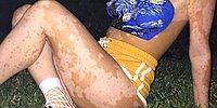 The Brave Woman Who Paints And Loves The White Spots On Her Body Caused By The Vitiligo