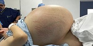 Самая большая киста в мире? Женщине провели операцию по удалению опухоли весом в 33 кг