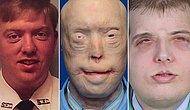 13 Before And After Photos Of People Who Had Facial Transplants
