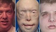 13 фотографий людей ДО и ПОСЛЕ трансплантации лица