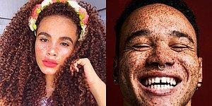 17 Incredibly Beautiful People Who Prove Freckles Are Gorgeous!