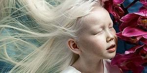 Сибирская Белоснежка: девочка-альбинос, поразившая модельные агенства уникальной красотой