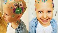 7 Year Old Girl With Alopecia Rocks Her Unique Style On Crazy Hair Day