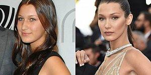 10 Celebrities Who Had Plastic Surgery Way Too Early In Life!