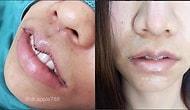 Ушивание губ: новый сумасшедший тренд набирает обороты😱