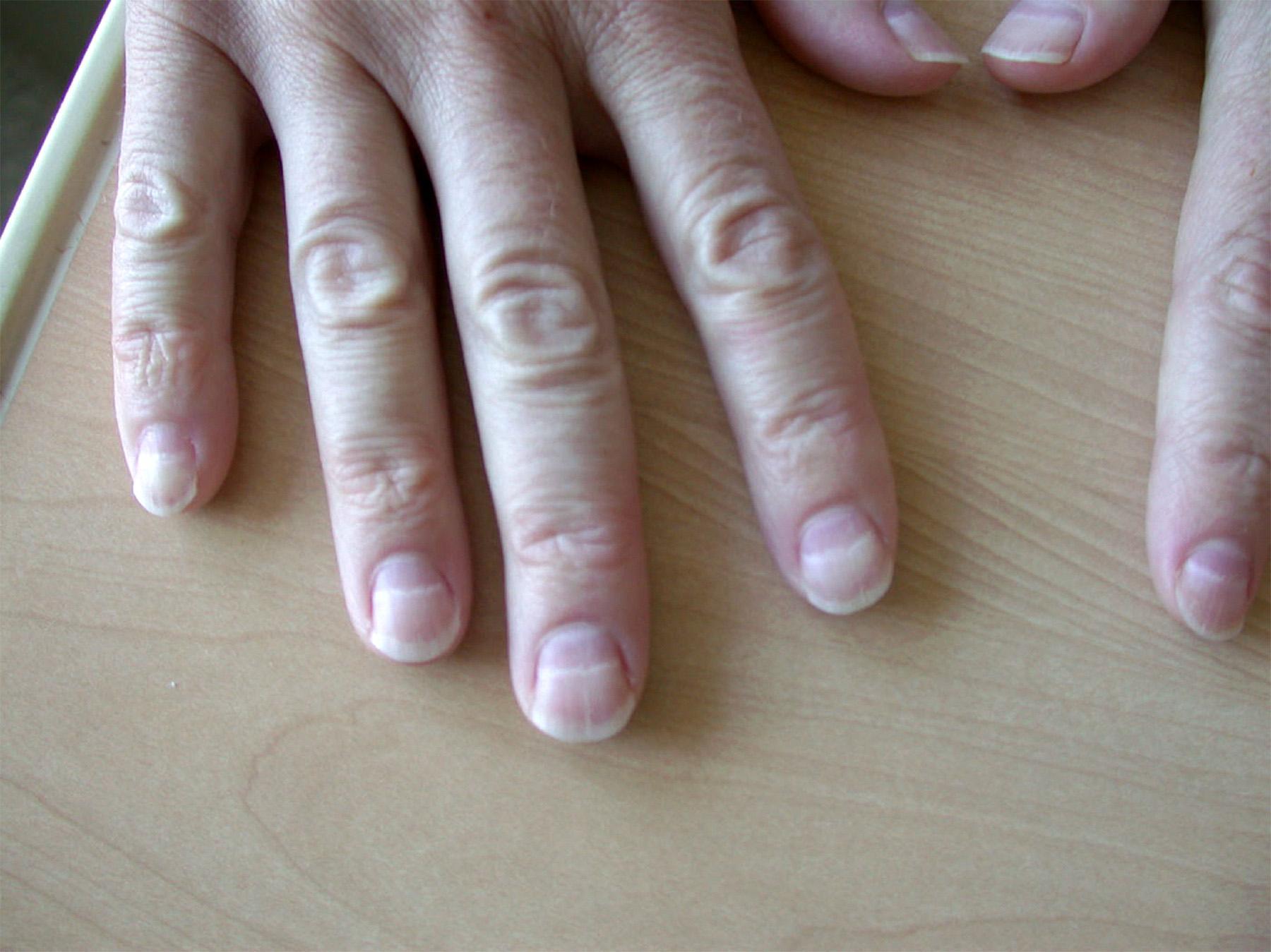 Неровные ногти у ребенка на руках фото