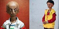 10 шокирующих мутаций человека