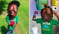 "8 Year Old Boy With Massive Head Tumors Defies All The Bullies Calling Him ""A Monster!"""
