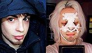 Argentinian Man Spends More Than $32,000 On Plastic Surgery To Become A 'Real-life ELF'