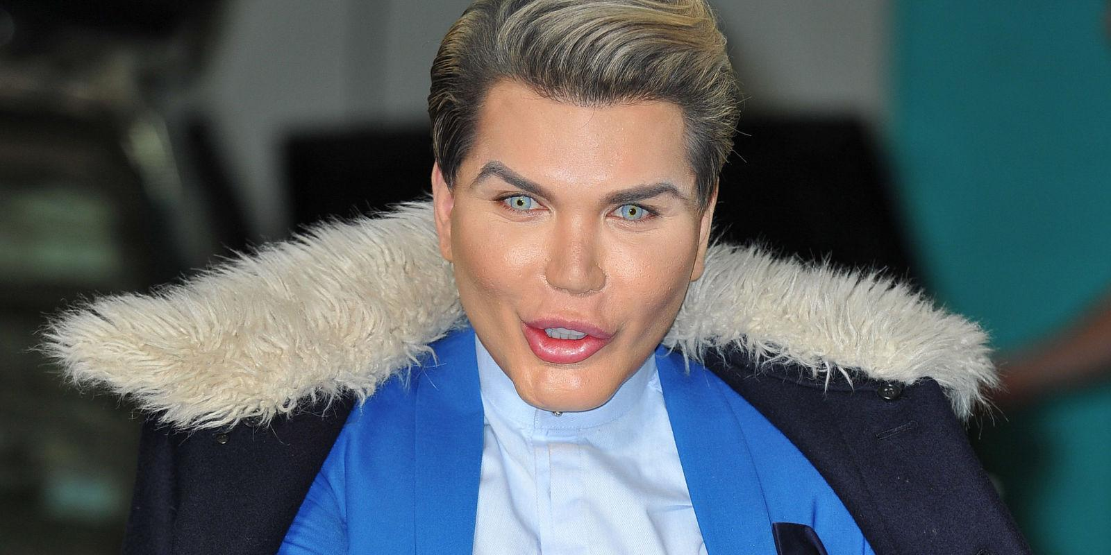 Human Ken Doll To Get His Eye Color Changed Despite The