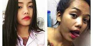 Студентка из Таиланда осталась с ужасными шрамами на груди после удаления тату