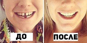 """20 фото """"До и После"""" брекетов, доказывающих что красивая улыбка меняет все"""