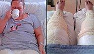 This Woman Almost Lost Her Legs After Developing A Flesh-Eating Infection After Shaving Her Bikini Line!