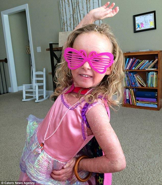 6 yaşındaki Hanna, hemen hemen bütün derisini bir gün içinde değiştiriyor.