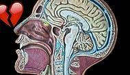 Что происходит в нашем мозге во время разрыва с любимым/ой