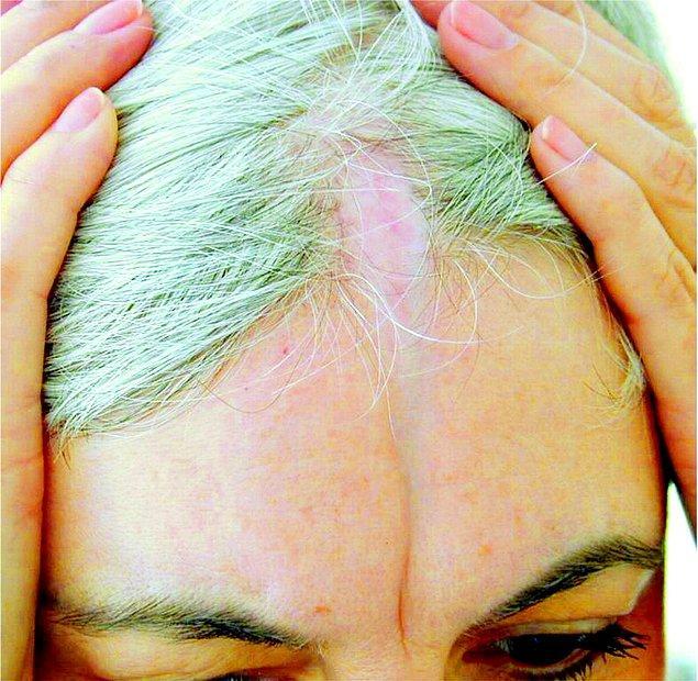 Doku çökmeleri kafa derisinin ön bölgesinde başlıyor ve bu bölgede saç dökülmeleri yaşanıyor.