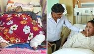 Самая толстая в мире женщина, похудевшая на 323 кг, скончалась