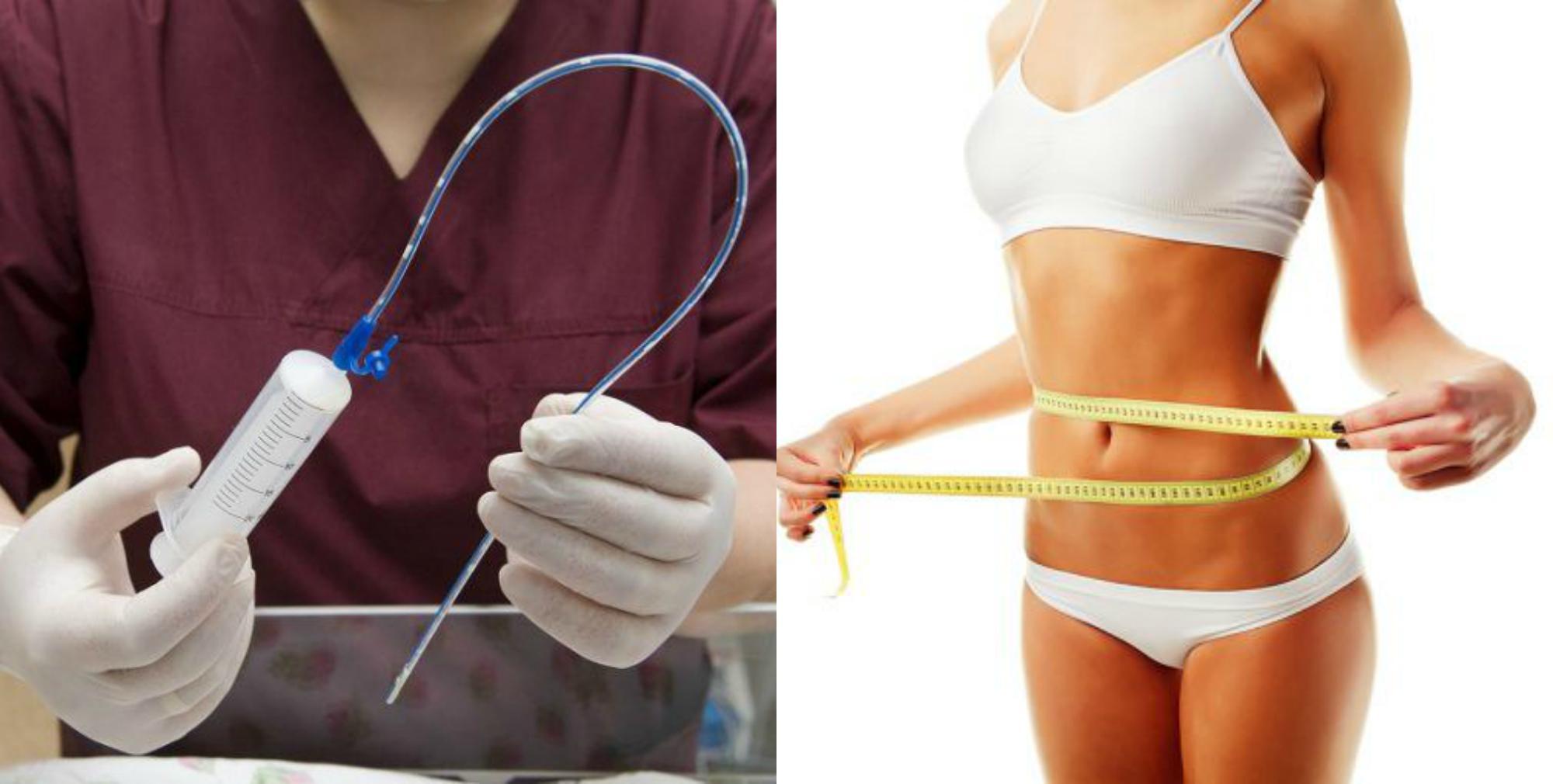 Медицинский способ похудения