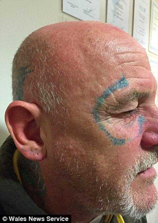 Dövmenin çıplak gözle görülemez hale gelmesi için altı tedavi gördü.