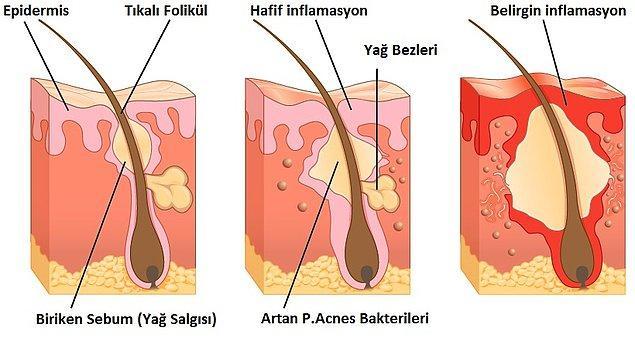 Yiyecek alerjisinin de bu sorunu artırdığı düşünülüyor.