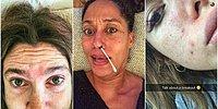 11 знаменитостей, не побоявшихся показать свои недостатки всему миру