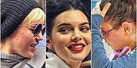 11 знаменитостей, о проблемах с кожей которых вы даже не подозревали