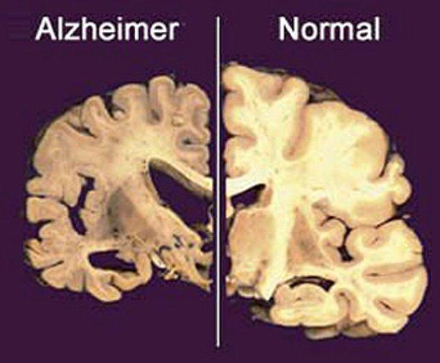 Her ne kadar vücudumuz alüminyumu başarıyla dışarı atabilse de, diyetle alınan alüminyumun Alzheimer hastalığının gelişiminde potansiyel bir faktör olduğu öne sürülmüş.